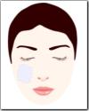 遅発性両側性太田母斑画像